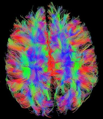 A Painted Brain that Resembles fMRI