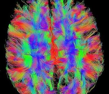 Paint fMRI Brain